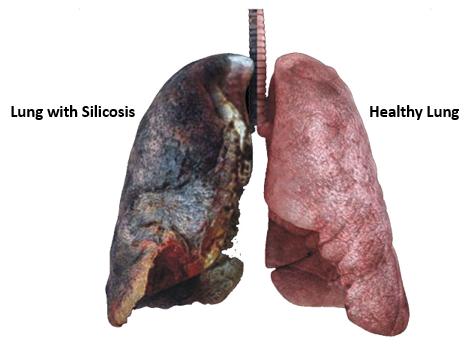 silica-lung